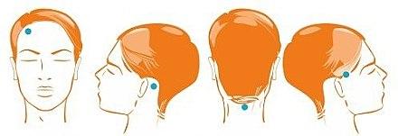 Пластыри против выпадения волос, 28 шт - Dermastic Anti-Hair Loss Patches — фото N2